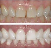 tooth-bleaching